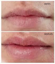 dermapen labios