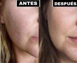 efectos dermapen antes y despues
